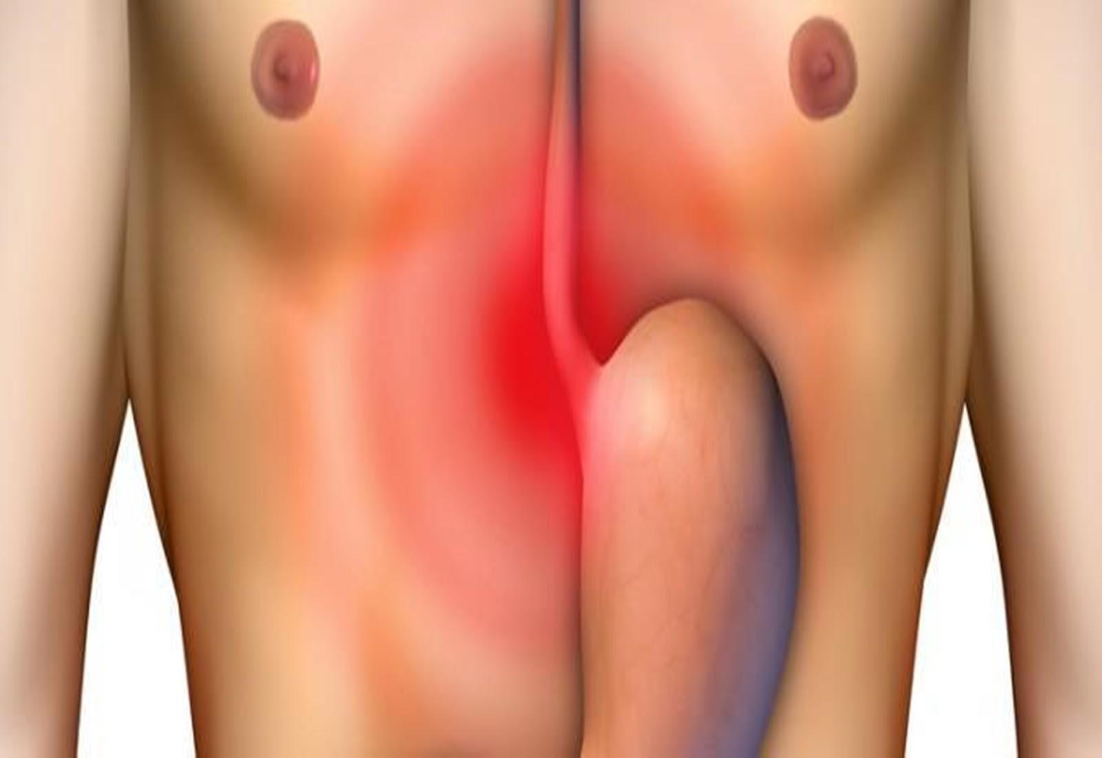 O desequilíbrio de líquidos digestivos no estômago