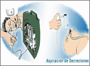 ASPIRACION DE SECRECIONES DOWNLOAD