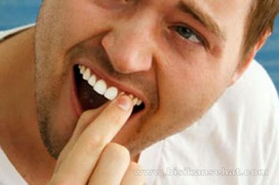 6 Cara Mengatasi Gigi Goyang Sebelum Copot Agar Tidak Ompong