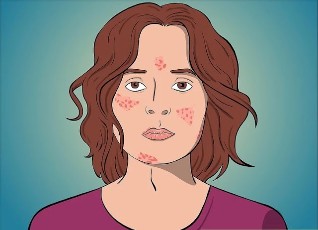 step 1 difference acne and cystic acne