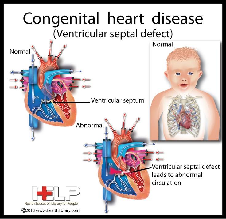 congenital heart disease in children - 736×715