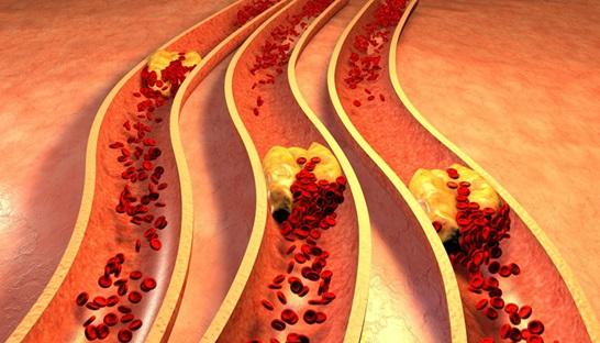 Obat Herbal Lemak Darah Mujarab