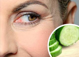 Dissimuler les rides des yeux avec ces remèdes naturels
