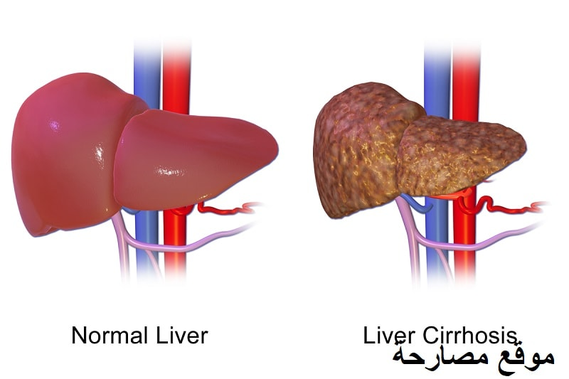 ما هو مرض تليف الكبد ؟