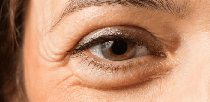 remedios contra ojos hinchados