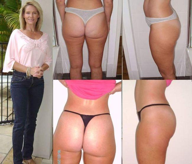 cuerpo-sin-celulitis-fotos-antes-despues-nicky