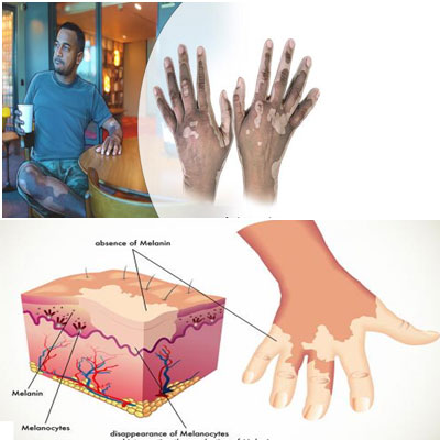 What is Leucoderma and vitligo, homeopathic treatment and