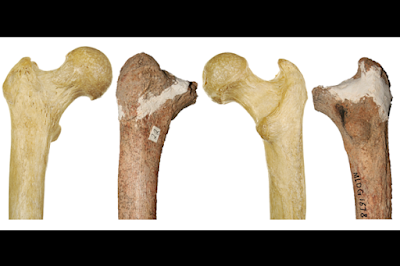 Fosil Manusia Kuno Misterius Usia 14.000 Tahun