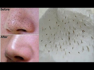 How To Remove Tons of Blackheads and Whiteheads Instantly! (Home Remedy)