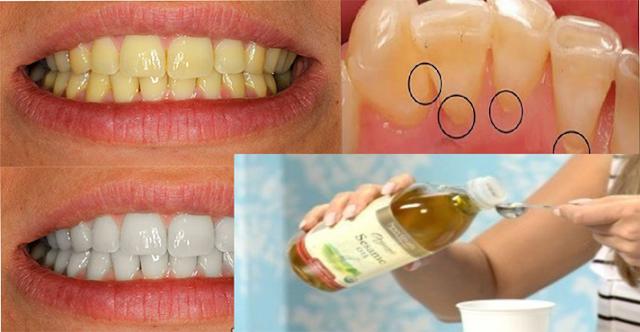 Dile adiós al mal aliento, placa, sarro y bacterias dañinas en la boca con este ingrediente