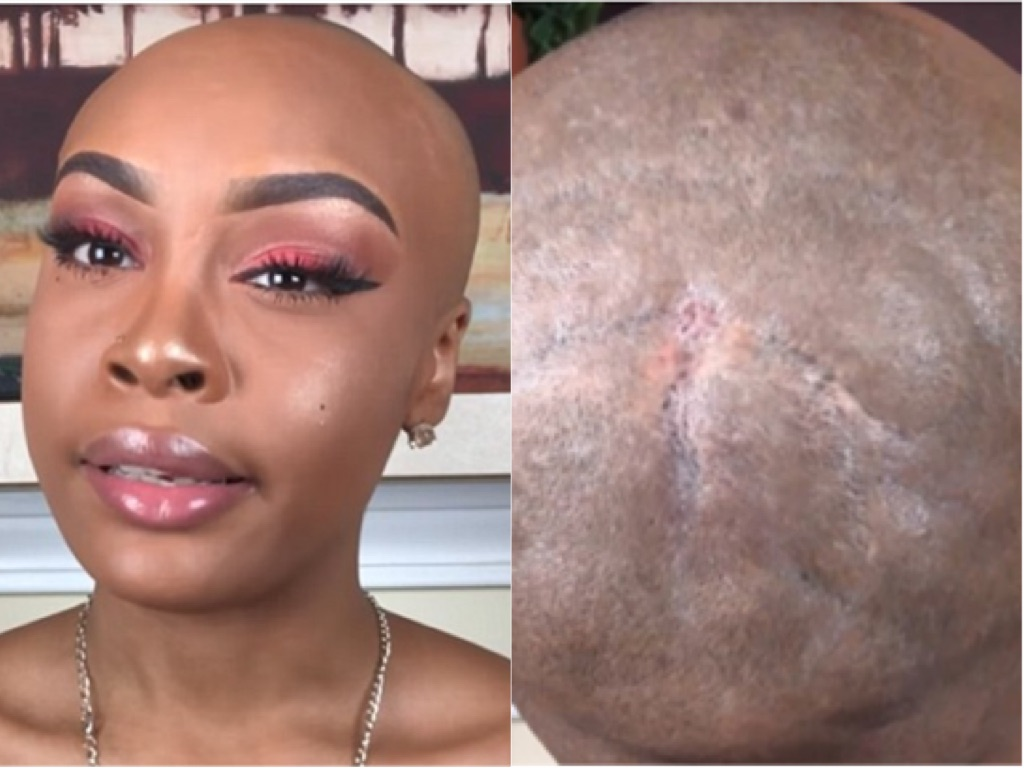Vlogger Shares Graphic Details Of How Weave Severely Damaged Her