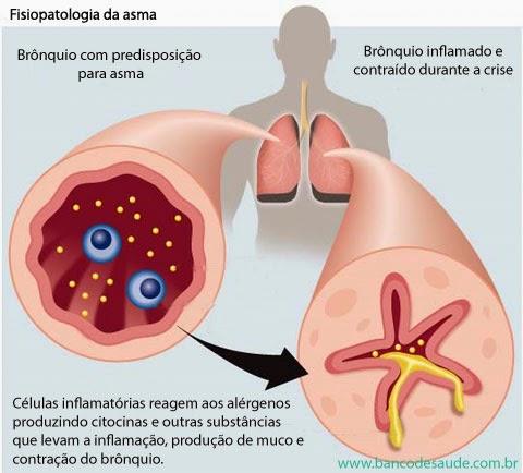 #Asma | O Que é Asma?