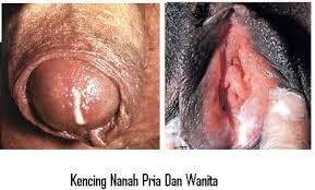 Penis Terasa Panas Dan Ujungnya Keluar Nanah
