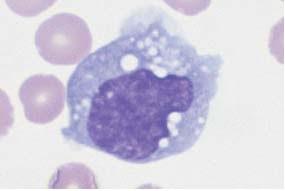 Phagocytic monocyte with plasma vacuoles.
