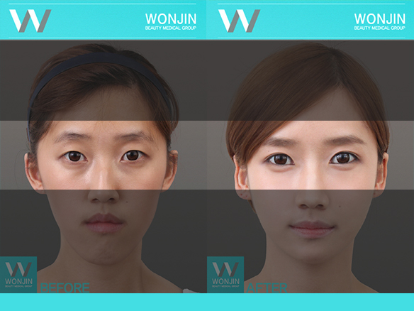 Korean Celebrities Eye Plastic Surgery - Dark Circle ...