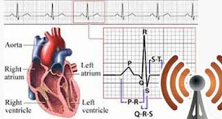 wifi pendeteksi jantung