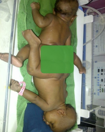 Photos: Nigerian Conjoined Twins Miracle & Testimony Ayeni's Surgery Sponsored By Arik Air