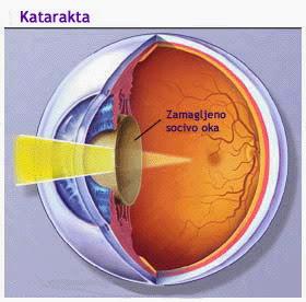 Kako da sačuvate vid