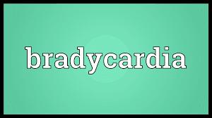 bradycardia-www.healthnote25.com