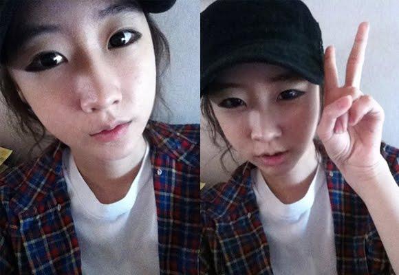 짱이뻐! - Feel Like Being A Real Woman After Korea Two Jaw Surgery