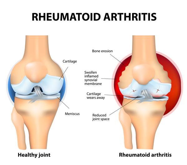 World Arthritis Day Rheumatoid Arthritis