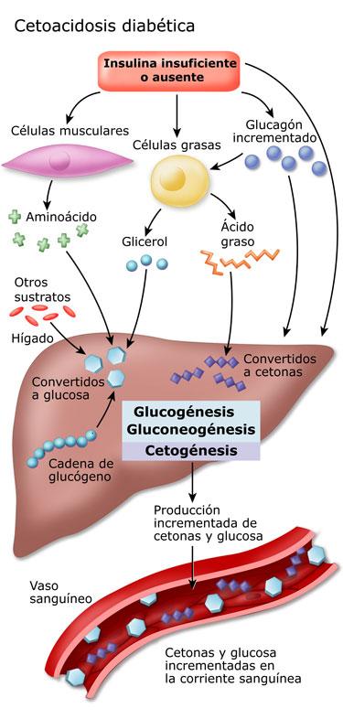 cetonas diabetes respiración