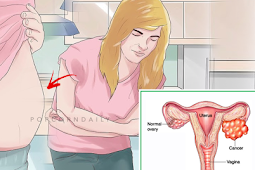 Common Signs and Symptoms of Ovarian Cancer Women Often Ignore