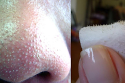 5 Awesome Tips to Remove Blackheads