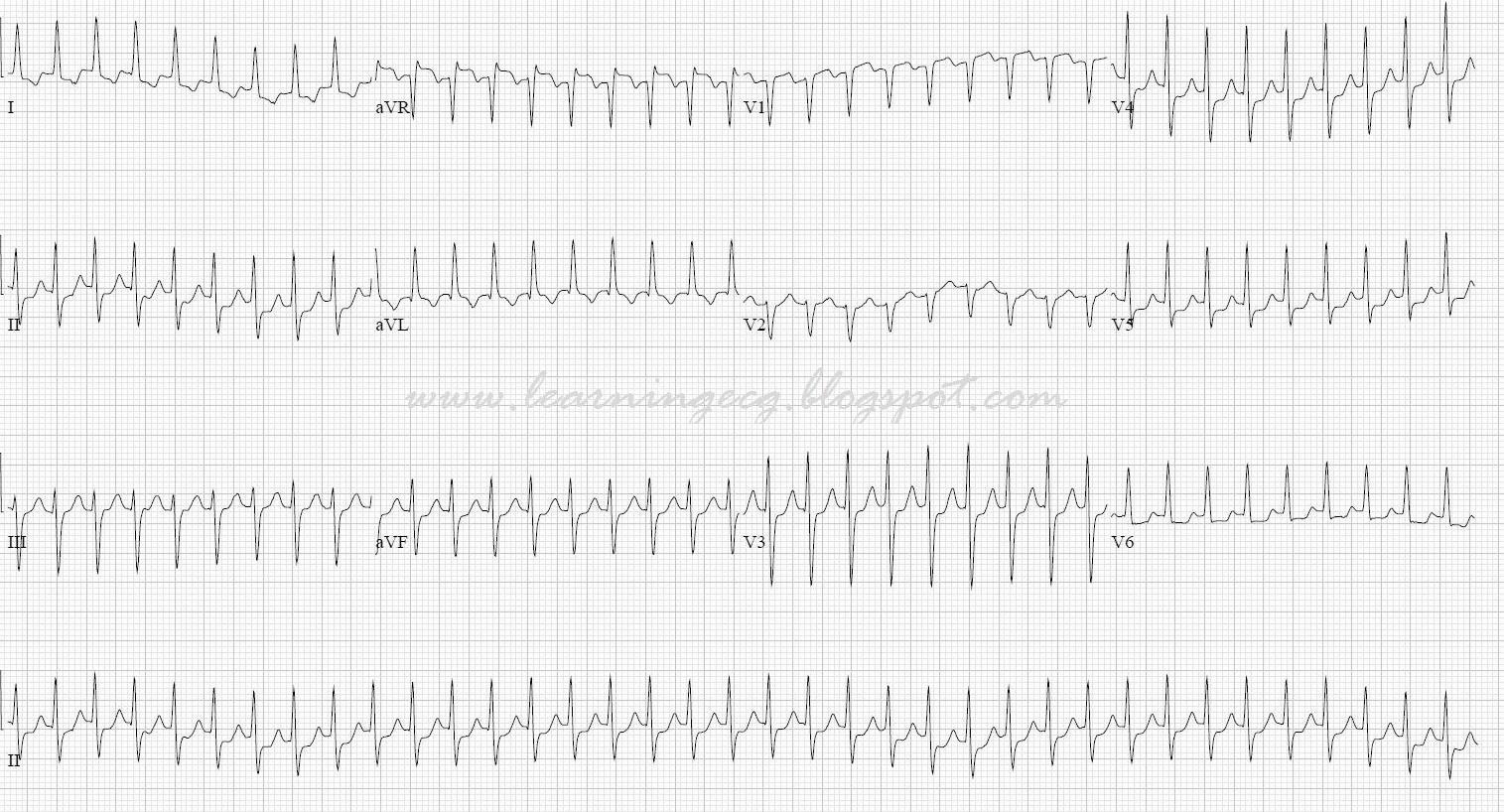 Ecg Rhythms A Supraventricular Tachycardia