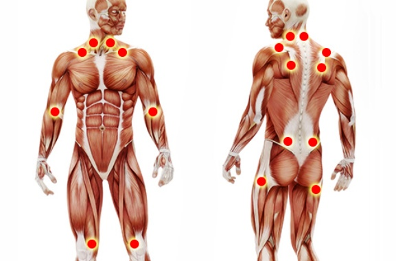 Illustration of Fibromyalgia Pain Points
