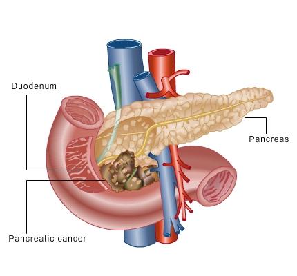 Pancreatic Cancer Symptoms In Men Nhs Natural Cancer