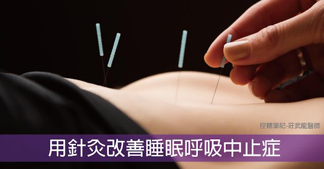 用針灸改善睡眠呼吸中止癥 - 控糖筆記:專業圖解糖尿病及甲狀腺衛教網站