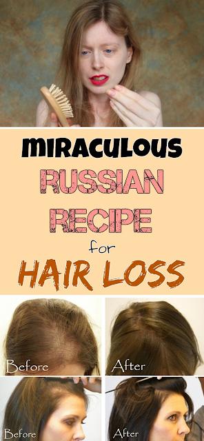 Miraculous Russian recipe for hair loss