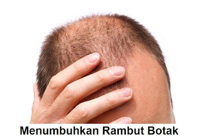 bisakah rambut botak tumbuh kembali lagi?
