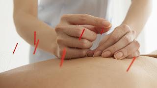 Akupunktur Konrendikasyonları