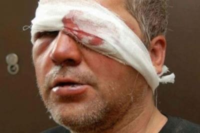 Отбился от орд Путина, но пал жертвой хулиганов: в Запорожье избили карателя АТО