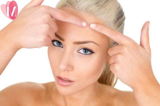 9 cách trị mụn đầu trắng hiệu quả tại nhà