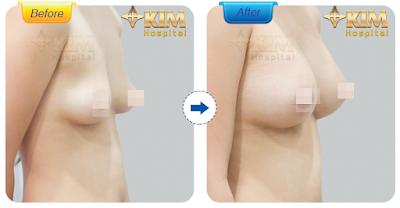 Với kỹ thuật thẩm mỹ phát triển như hiện nay, bạn có thể yên thâm thực hiện phẫu thuật mà không phải lo lắng nâng ngực chảy xệ có nguy hiểm không