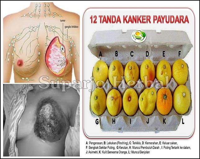 Info Kesehatan Terkini