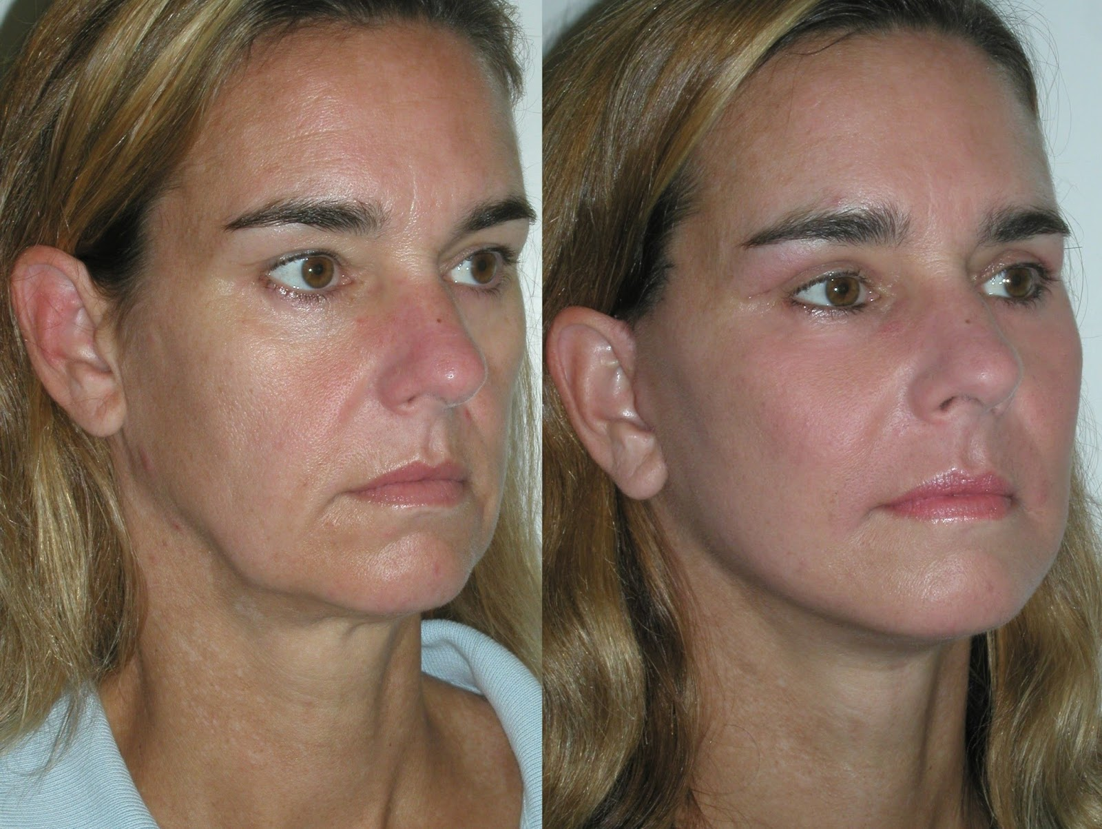 Fill Out Sunken Cheeks With Facial Aerobics Treatments: Facelift Q&A