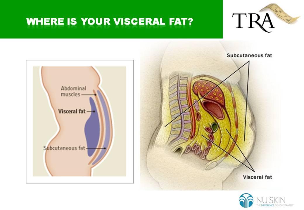Visceral Fat Pictures 115