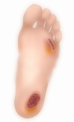 Maladies de la peau
