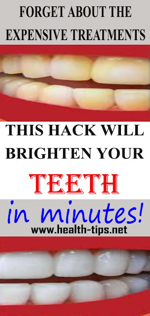Yellow Teeth? Try This Hack! It Actually Works!#NATURALREMEDIES