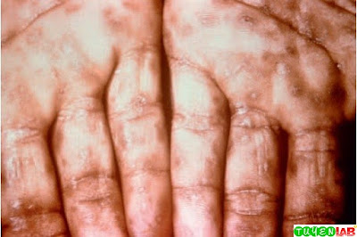 Close-up view of keratotic lesions on the palms of a patient's hands due to a secondary syphilitic infection. Each lesion is full of treponemes.