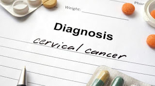 Wanita Usia Produktif Rentan Kena Kanker Serviks, Wanita Usia Muda pun Rentan Terkena Kanker Serviks, Wanita Usia Produktif yang Rentan Terserang Kanker Serviks