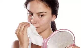 Cara mengatasi kulit kusam, kulit kering, wajah kering, wajah berminyak