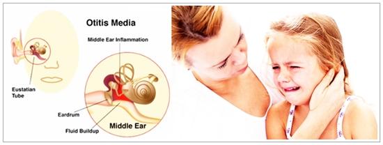 Cara Mengobati Radang Telinga Dengan Obat Herbal Alami