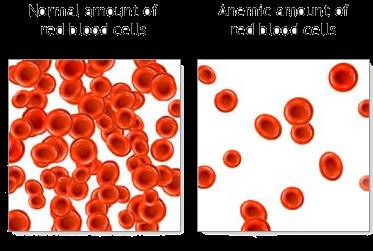 Tips Mengatasi Anemia (Kekurangan Zat Besi) Semasa Hamil Sebelum Dimarahi Nurse
