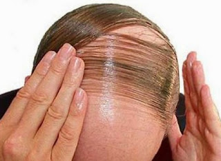 Cure For Baldness Tips