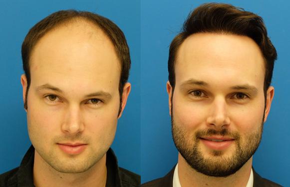 istanbul hair transplant